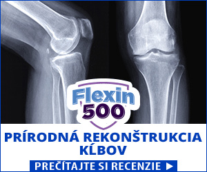 Flexin500 - kĺby
